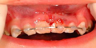 外傷(歯のケガ)の治療